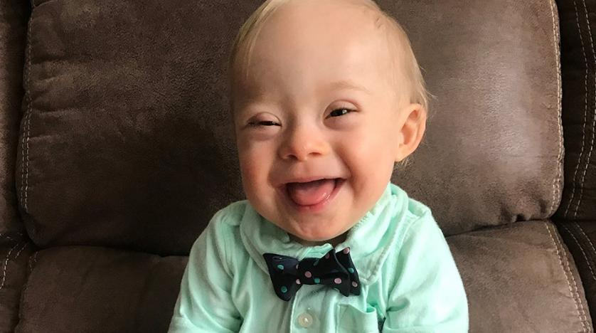 First child with Down syndrome wins Gerber child of the yr